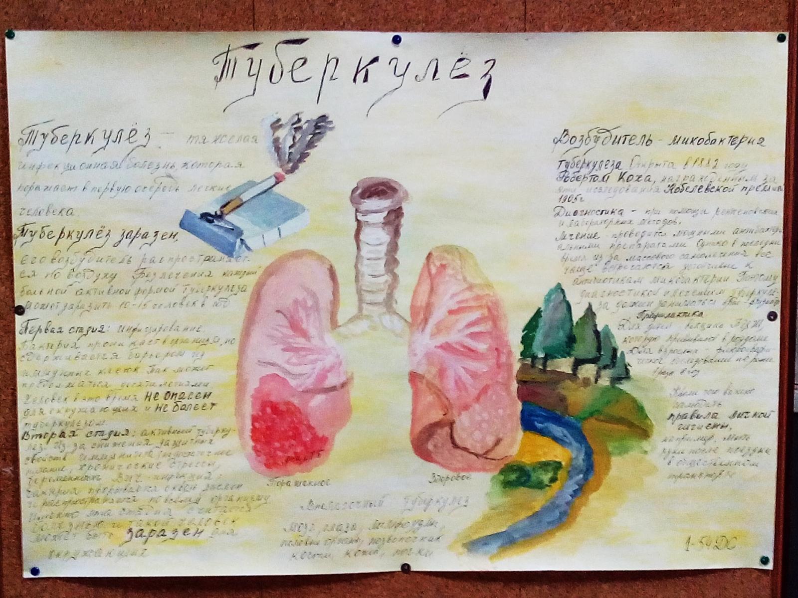 ТПЭК События Мероприятия колледжа Итоги конкурса   1 54ДС 2 23ПС Туберкулезу